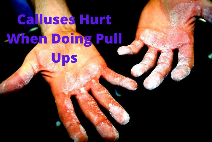 Calluses Hurt When Doing Pull Ups